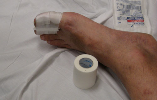 The injured appendage.